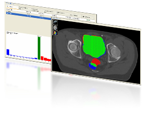 StructSure software compares two sets of DICOM images
